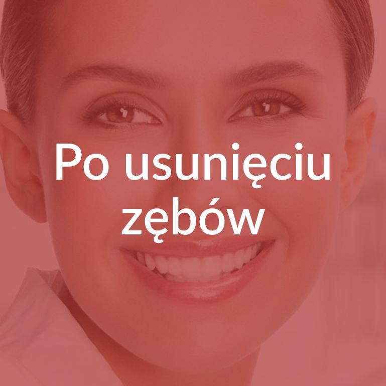 Zalecenia Po usunięciu zębów Białystok