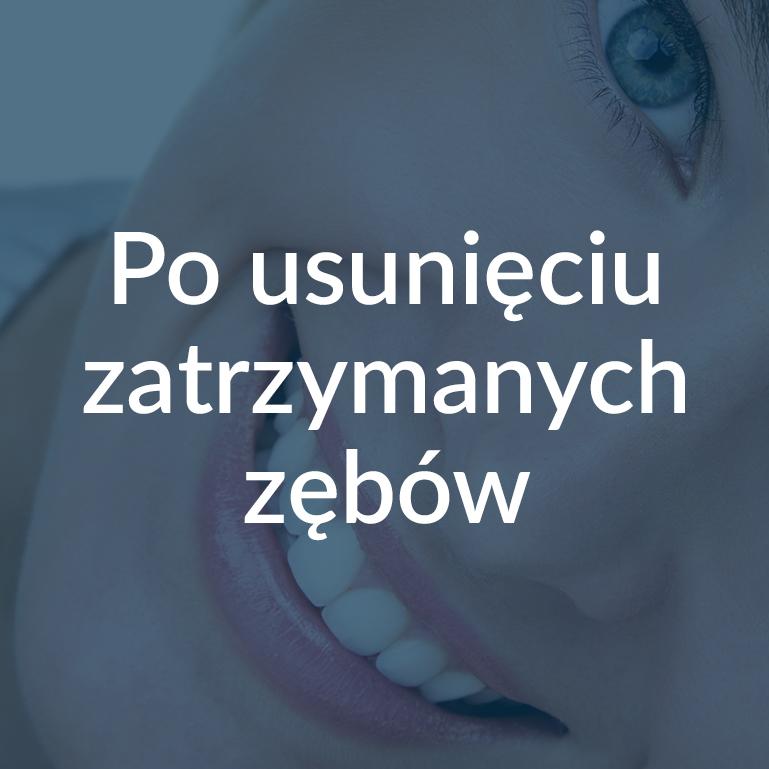 Zalecenia Po usunięciu zatrzymanych zębów Białystok