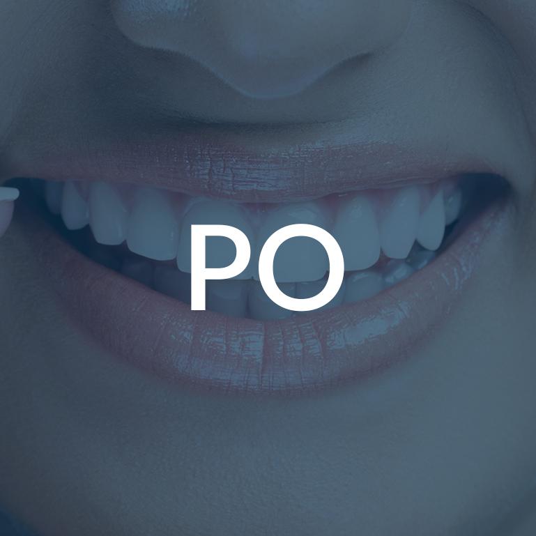Zalecenia po zabiegach dentystycznych Białystok