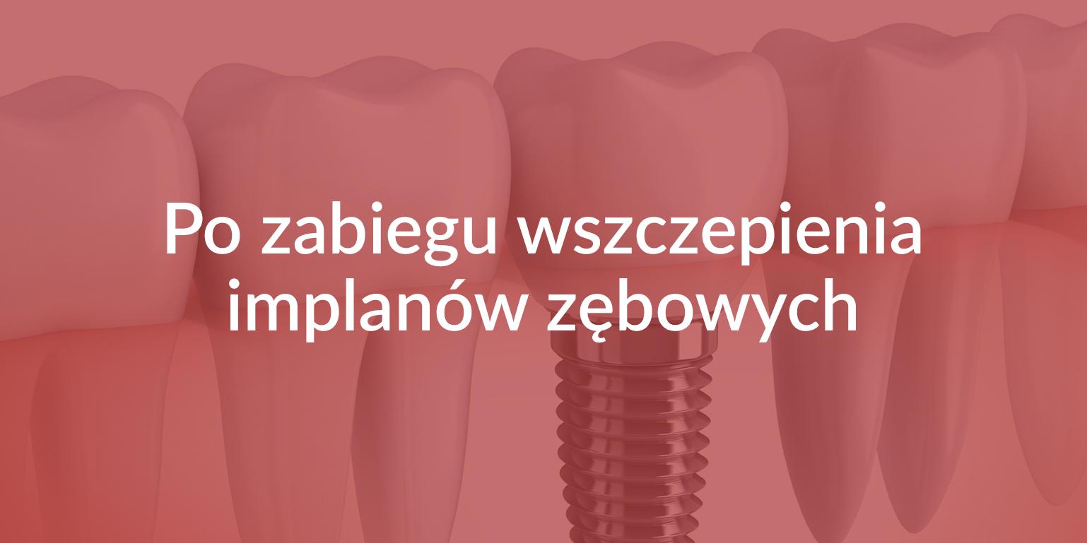 Zalecenia po zabiegu wszczepienia implanów zębowych Białystok