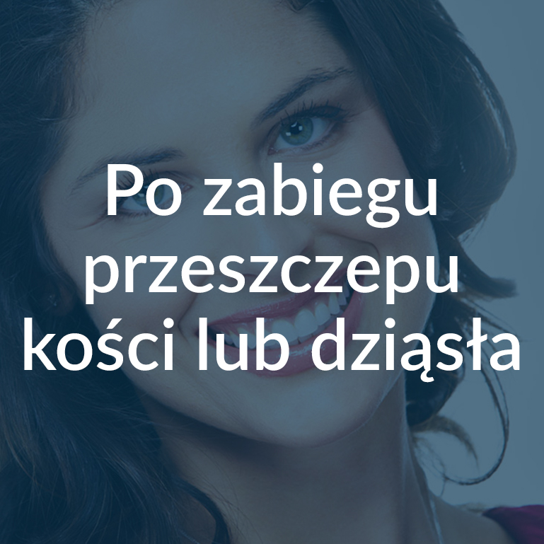 Po zabiegu przeszczepu kości lub dziąsła Białystok