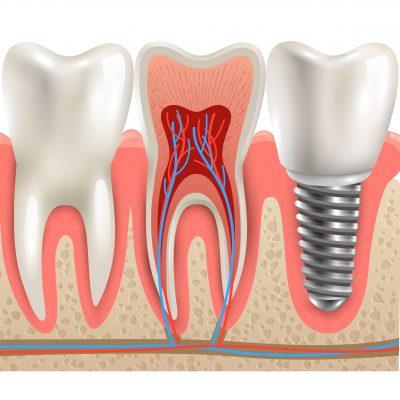 Dentysta Białystok - Co to jest implant zębowy obraz wyróżniający